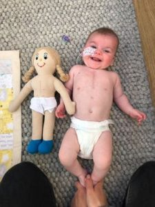 Baby and doll with heart surgery scars