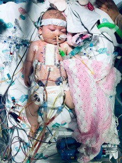 Baby after heart surgery
